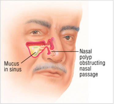 Nasal Polyp   bodhin